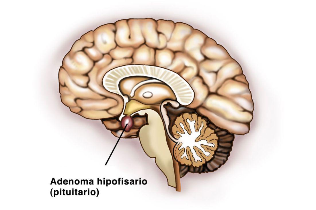 Patologías: Adenomas de la pituitaria