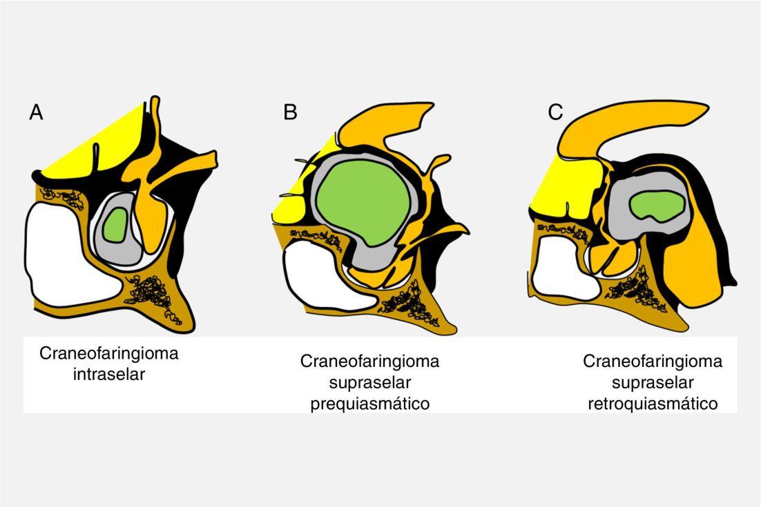 Patologías: Craneofaringiomas