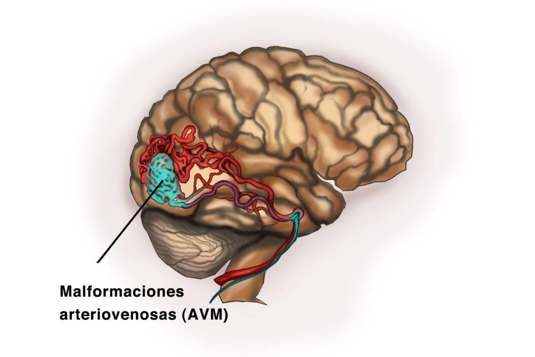 Malformaciones Arteriovenosas Cerebrales (MAV)