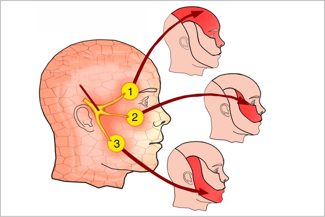 Patologías: Neuralgias del trigémino