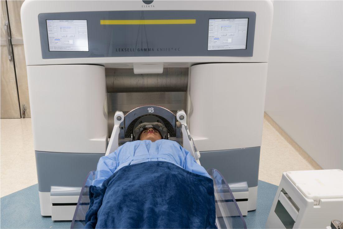 Resultado de imagen de radiocirugía