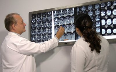 Radiocirugía con Gamma Knife. Efectos Secundarios