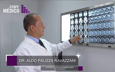 Dr. Aldo Paliza Ravazzani. Uso de Gamma Knife® en Tumor de Metástasis Cerebral